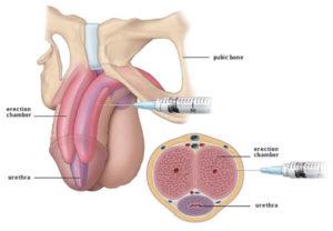 SKAT: Schwellkörper-Autoinjektionstherapie